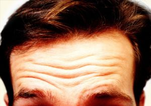 Como-reducir-las-arrugas-de-la-frente-de-manera-natural-2
